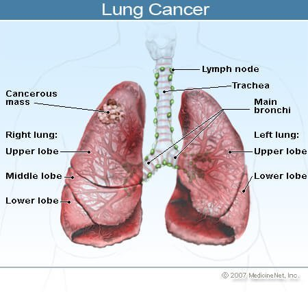 how to know if you have lung cancer yahoo